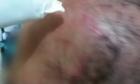 Denúncia termina com resgate de criança com perfuração no crânio