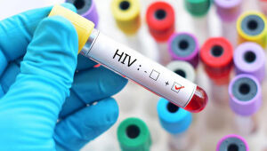 Pesquisa detalha distribuição dos subtipos do HIV no Brasil