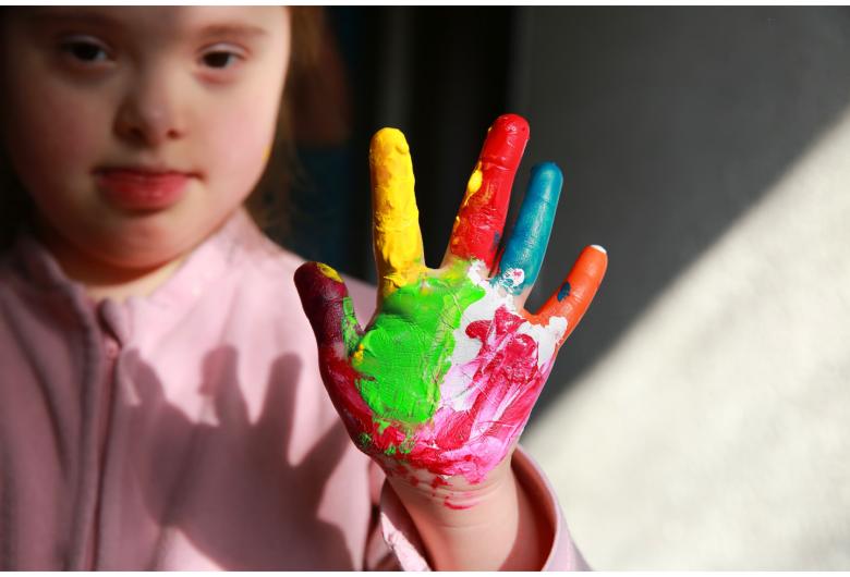 Douradown: Pais de crianças criam associação para garantir inclusão