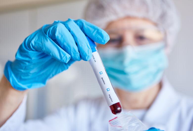 UFF desenvolve testes de diagnóstico rápido da covid-19