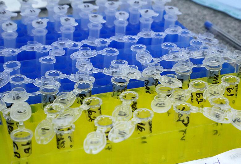 Com mais 156 confirmados, Mato Grosso do Sul passa para 1.802 pacientes com coronavírus