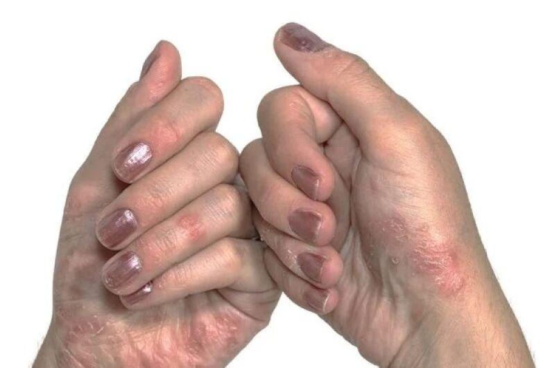Pacientes adultos com psoríase passam a contar com novo medicamento SUS