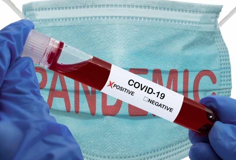 MS confirma quase 80 mil casos de covid-19
