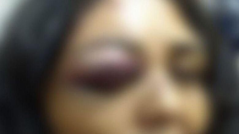 Mulher teve ferimentos no rosto e precisou de atendimento médico - (Foto: Ilustrativa) - Crédito: Ilustração