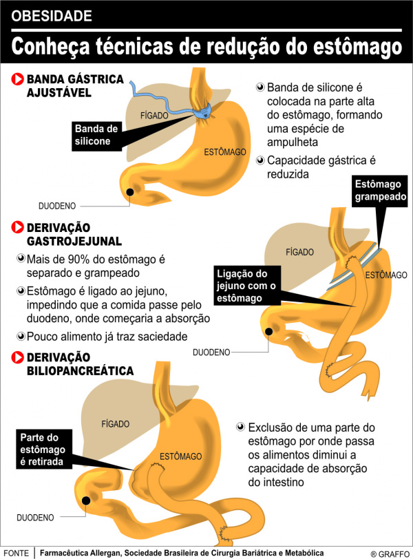 Cirurgia beneficia paciente crônico -