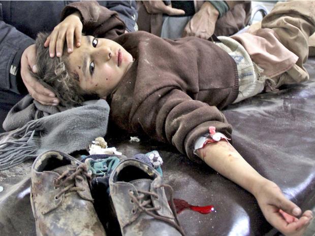 Menina paquistanesa ferida após atentado a bomba nesta quarta-feira - Crédito: Foto: AP