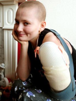 Cirurgia retirou 80% do tumor do braço esquerdo de Donna Shaw, de 17 anos - Crédito: Foto: PA / via BBC