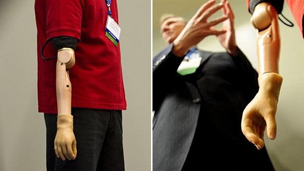 Todd Kuiken apresenta braço que pode ser controlado por impulsos do cérebro - Crédito: Foto: Jim Watson/AFP