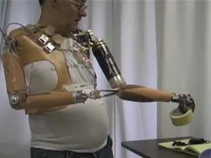 Jessie trabalha com equipe norte-americana para desenvolver mão biônica controlada por nervos do braço - Crédito: Foto: Universidade John Hopkins