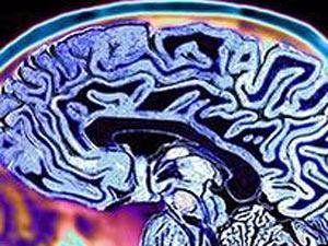 Escaneamento no cérebro de crianças pode revelar traços que podem apontar como uma pessoa terá comportamento violento no futuro - Crédito: Foto: SLP