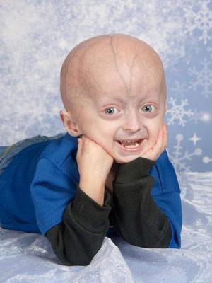 O garoto acima tem 4 anos e é portador de progéria  - Crédito: Foto: Progeria Research Foundation / cortesia