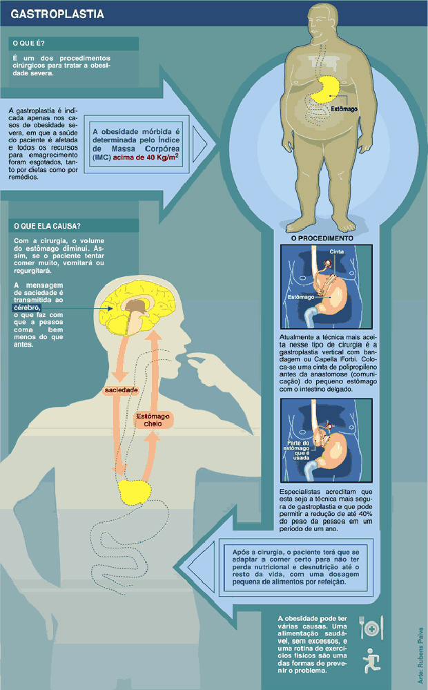 Gastroplastia soluciona obesidade mórbida -