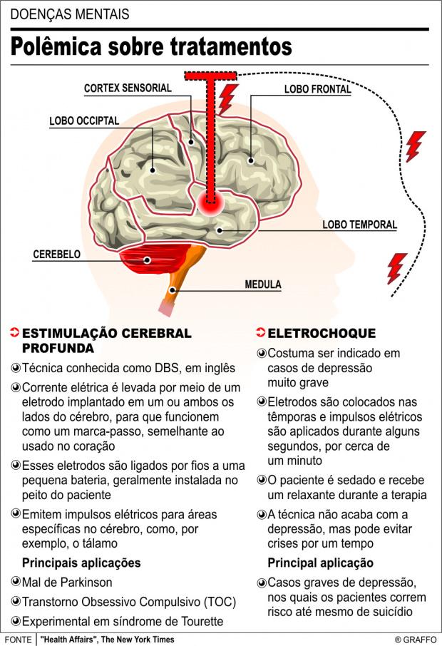 Doenças mentais: Técnicas colocam pacientes em risco -