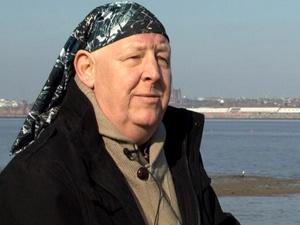 Robert Law, 59 anos, diagnosticado com câncer após transplante de rim no Reino Unido - Crédito: Foto: BBC