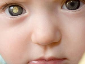 Montagem mostra como fotos podem revelar se a criança é portadora de retinoblastoma. - Crédito: Foto: BBC