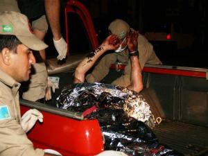 Vítima teve queimaduras de terceiro grau segundo bombeiros. - Crédito: Foto: PC de Souza/Edição de Notícias