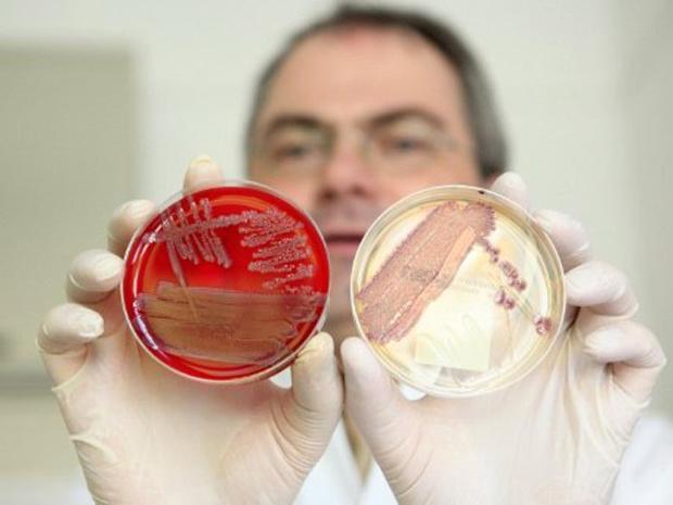 Helmut Fickenscher, diretor da Clínica Universitária de Schleswig-Holstein, em Kiel, Alemanha, mostra placas com colônias da bactéria \'E. coli\' - Crédito: Foto: Bodo Marks / AFP Photo