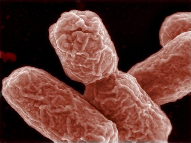 Exemplares da bactéria EHEC, vistos com microscopia eletrônica. - Crédito: Foto: Manfred Rohde / HZI / Reuters