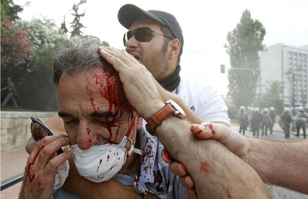 Ferido é socorrido durante confrontos de rua nesta quarta-feira - Crédito: Foto: AP