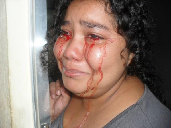 Débora Oliveira dos Santos, de 17 anos, afirma sangrar pelos olhos - Crédito: Foto: Diana Viana de Oliveira