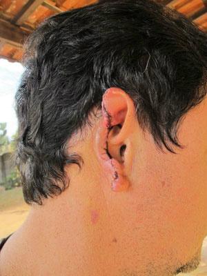 Cirurgia para reconstrução da orelha pode custar R$ 35 mil - Crédito: Foto: Juliana Cardilli/G1