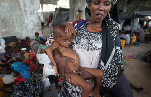 Mulher carrega filho desnutrido em acampamento para deslocados internos em Mogadishu, capital da Somália - Crédito: Foto: Ismail Taxta/Reuters