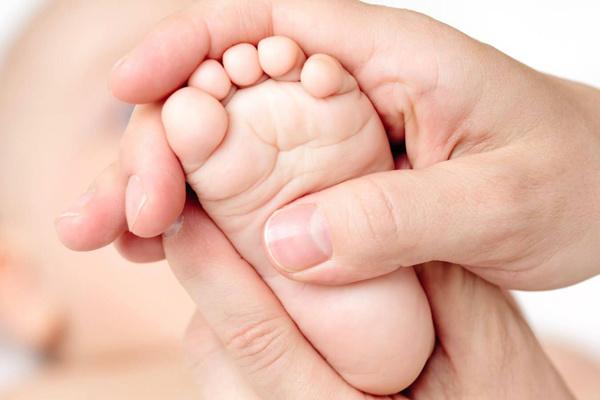A microcefalia é uma malformação congênita que atinge recém nascidos em vários estados no nordeste brasileiro. - Crédito: Foto: Divulgação