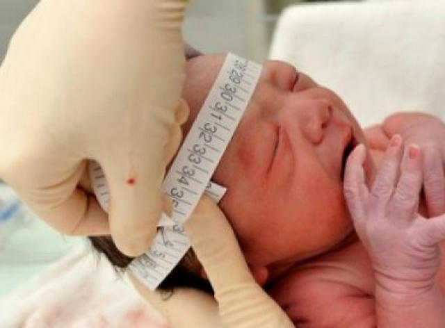 Não existe evidência relacionando qualquer vacina ao aumento de casos de microcefalia. - Crédito: Foto: Divulgação