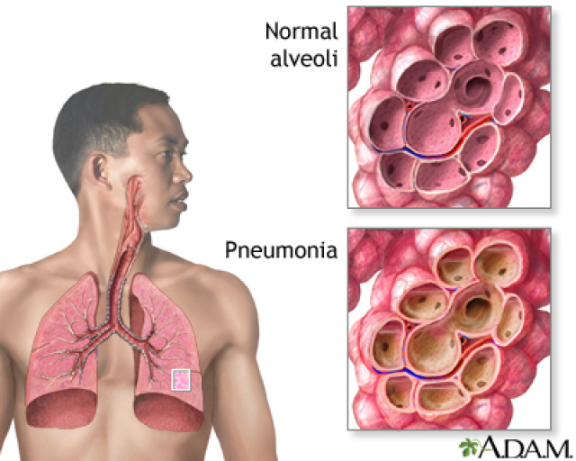 Tosse, febre e dificuldades para respirar são sinais de pneumonia. - Crédito: Foto: Divulgação/Adam