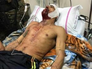 Suspeito de matar Rafaat vai terminar tratamento em repartição da polícia -