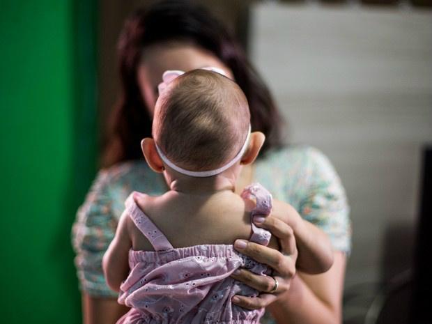 Ministério da Saúde pode mudar critérios para triagem de bebês com problemas relacionados ao vírusda zika: 20% têm cabeça de tamanho normal - Crédito: Foto: Jonathan Lins/G1