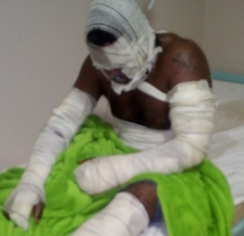 Homem de 33 anos está internado em estado grave - Crédito: Polícia Civil / Divulgação