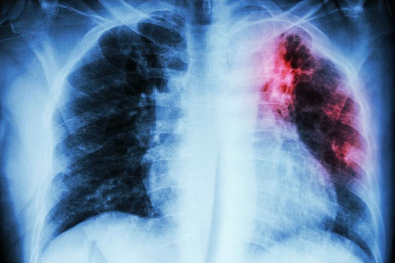 A tuberculose, como toda doença infecciosa de longa duração, também pode alterar a imunidade da pessoa e, por isso, torná-la mais suscetível ao desenvolvimento de outras doenças, inclusive ao coronavírus. - Crédito: Divulgação