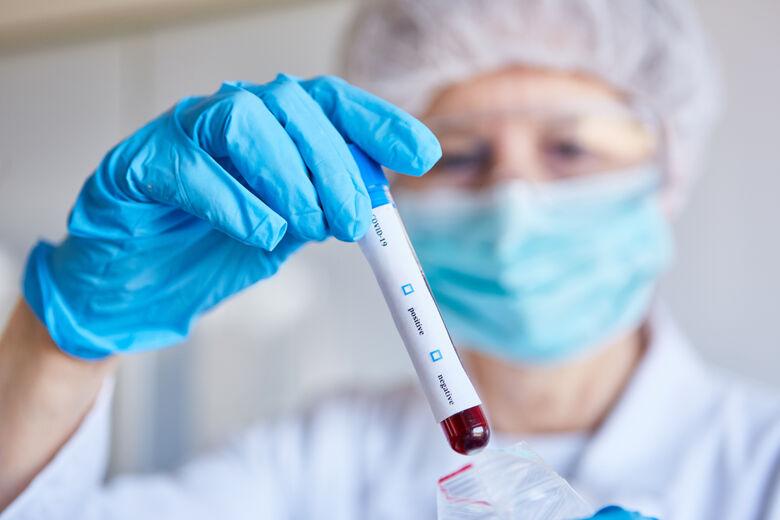 UFF desenvolve testes de diagnóstico rápido da covid-19 -