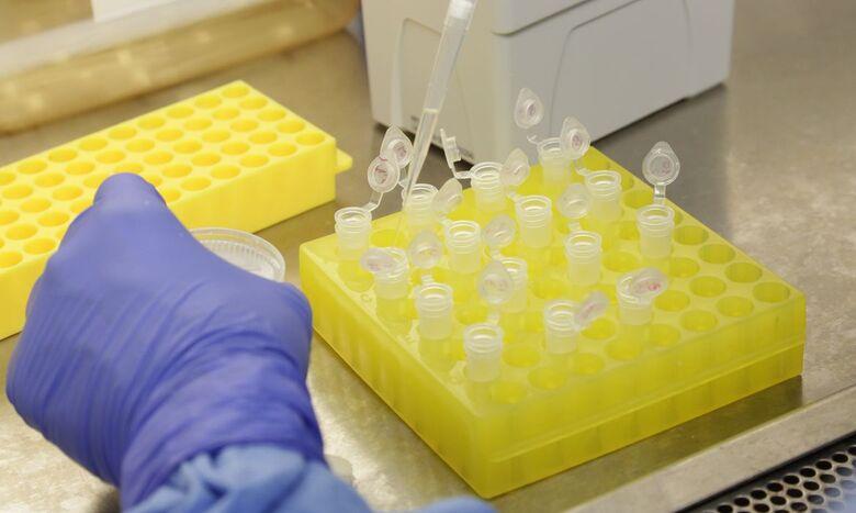 Com mais 94 confirmados, Mato Grosso do Sul passa para 1.356 pacientes com coronavírus -