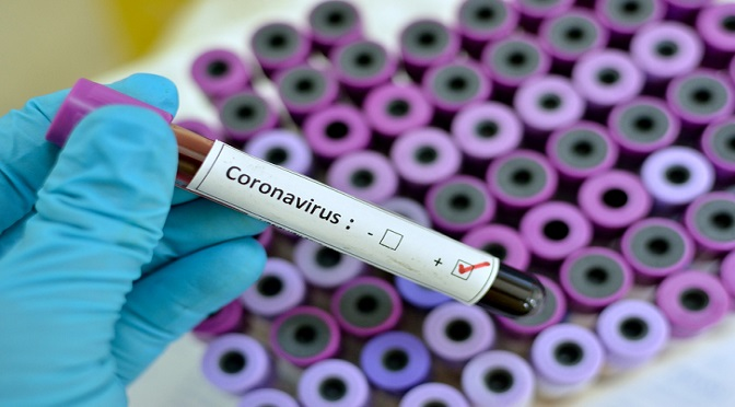 MS confirma mais 53 casos de Covid-19 em 24h; Estado atinge 858 infectados -